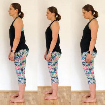 Wystający brzuch po ciąży to nie tylko rozejście mięśnia prostego brzucha