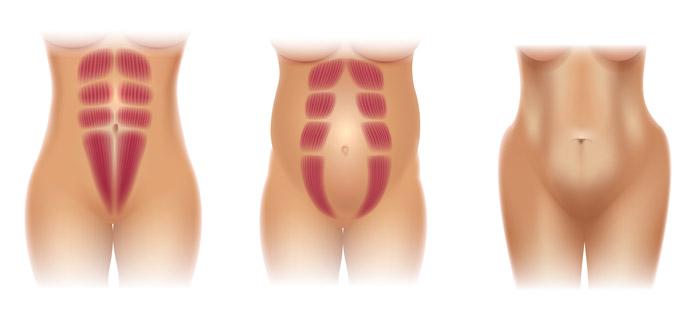 rozstęp mięśni brzucha
