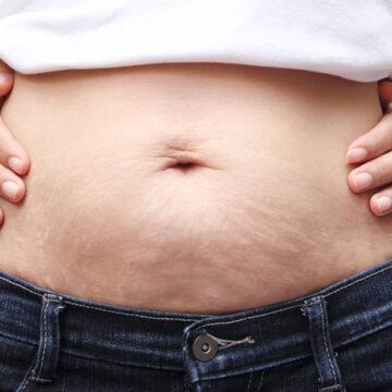 Zadbaj o brzuch po porodzie – 3 przyjemne sposoby